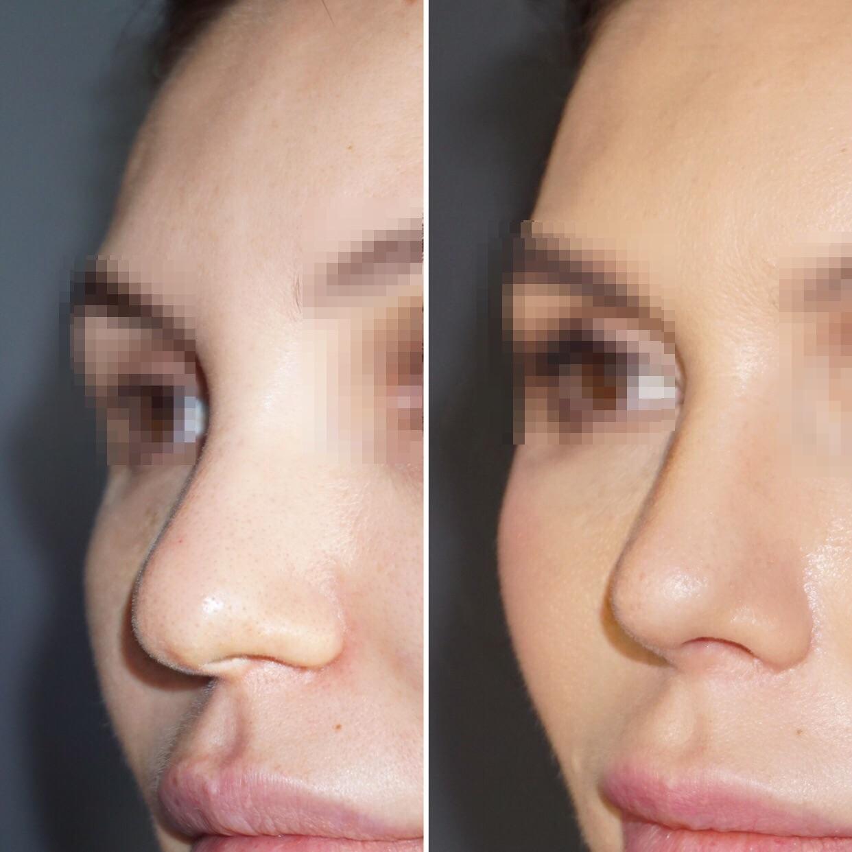 слишком короткий нос после ринопластики фото может быть худым